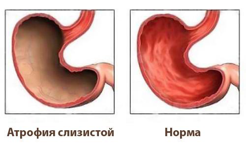 атрофия слизистой
