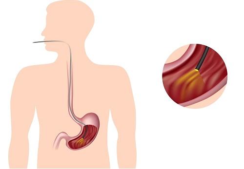Эндоскопия при геморрагическом гастрите
