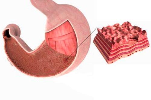 Эрозии на стенках желудка