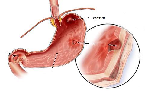 Эрозивный гастродуоденит