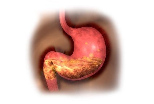 Снижение выработки желудочного сока