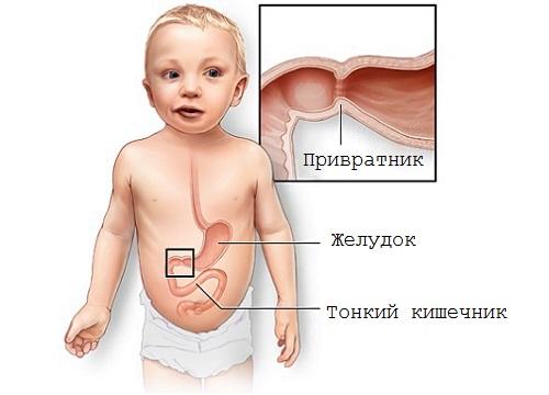 тонкий кишечник у ребенка