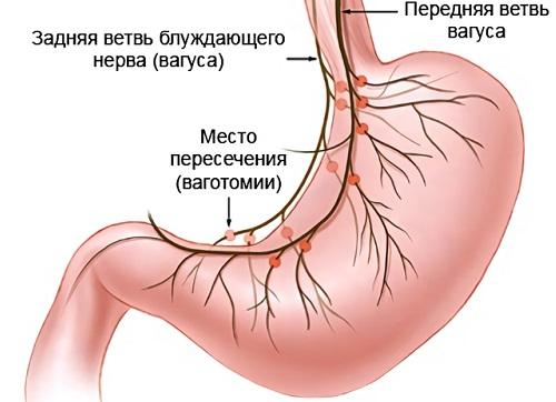 ваготомия желудка