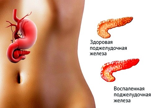 Воспаление поджелудочной железы