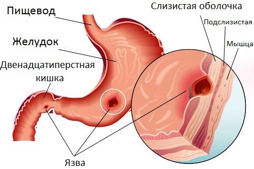 желудок с язвой