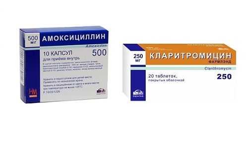 Антибиотики от язвы желудка