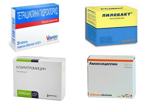 Антибиотики при гастрите с повышенной кислотностью