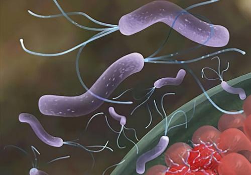 бактерия при язве
