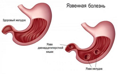 Характеристика язвенной болезни
