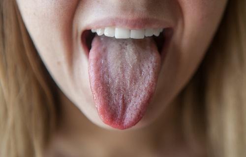 Язык при антральном гастрите