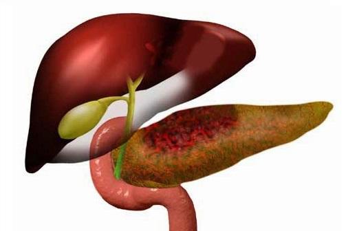 Осложнение панкреатит