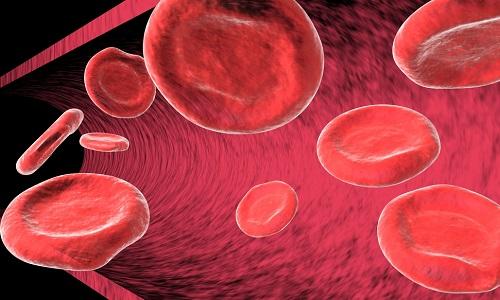 Состояние анемии
