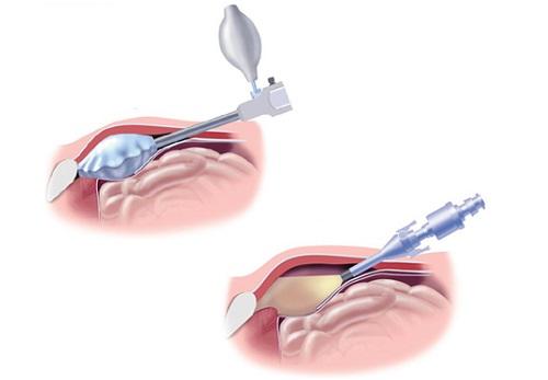 Лапароскопия грыжи