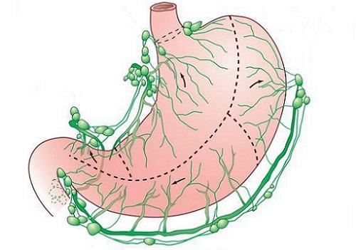 лимфоузлы у желудка