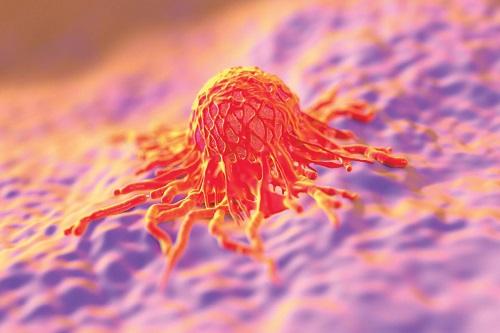Метастазирование при раке желудка