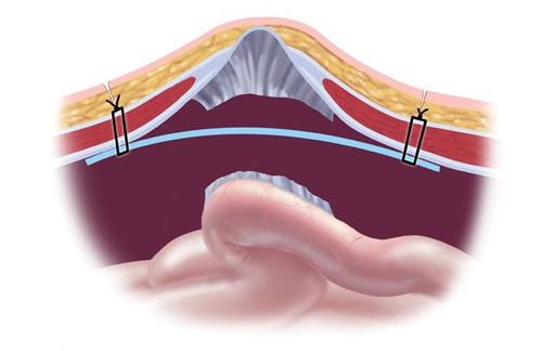 Операция при пупочной грыже