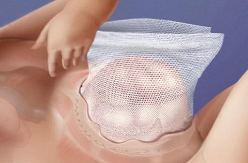 операция у ребенка