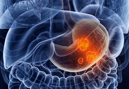 Основные симптомы рака желудка