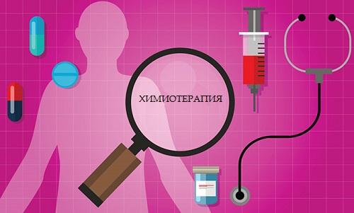 Виды химиотерапии при раке желудка