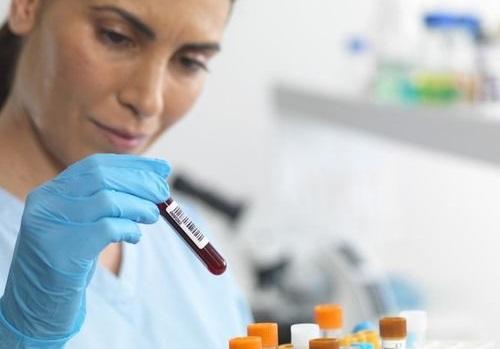 Анализ крови СА-125