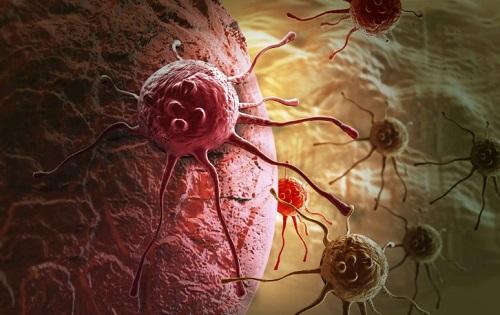 Рост опухоли в желудке