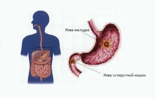 Интерстициальный рак желудка
