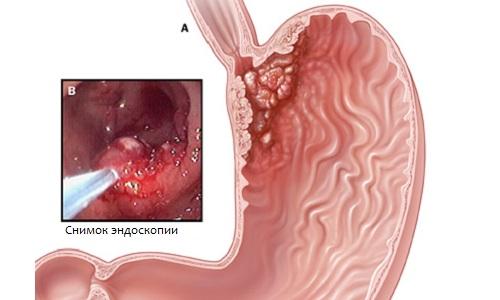 Рак кардиального отдела желудка