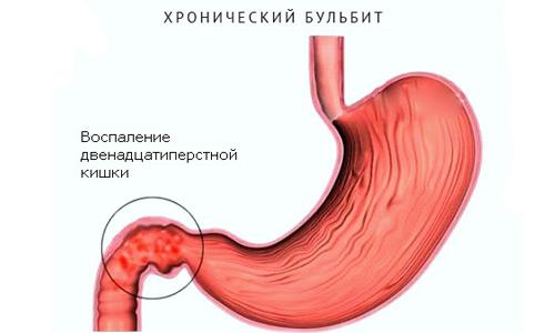 Бульбит желудка