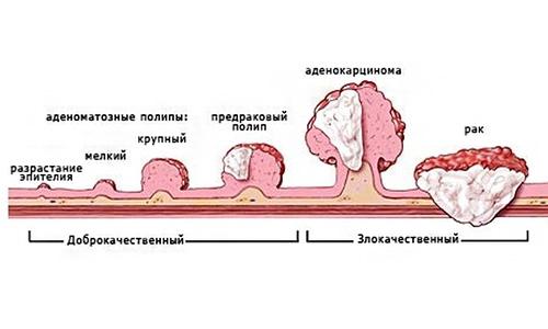 аденоматозное разрастание