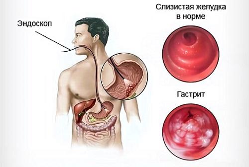 гастрит и питание