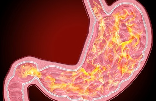 Изжога в желудке антральный гастрит