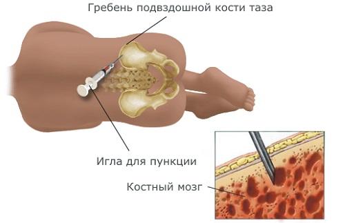 костный мозг