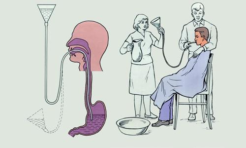мероприятия по промыванию желудка