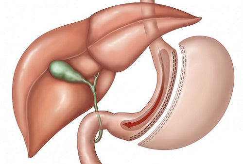 удаление части желудка