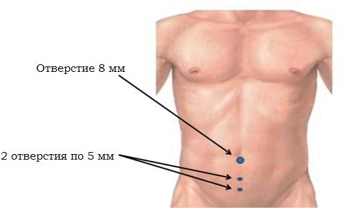 Эндоскопическая герниопластика