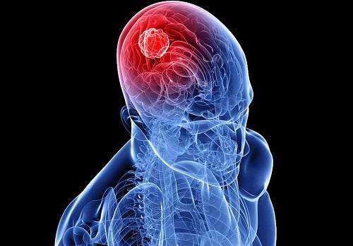 Метастазы в мозг