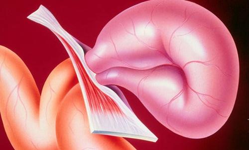Пупочная грыжа у взрослых лечение