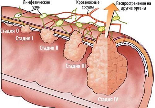 рак и его стадии