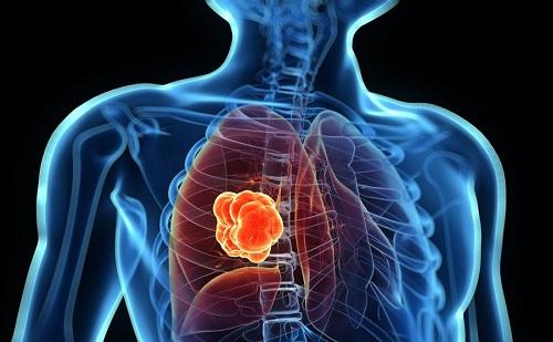 Рак в легких