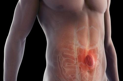 Симптомы грыжи у мужчин