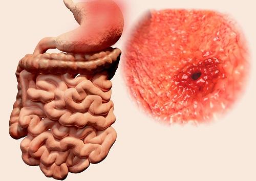 Каллезная язва желудка