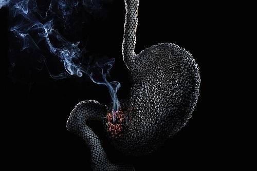 курение и желудок