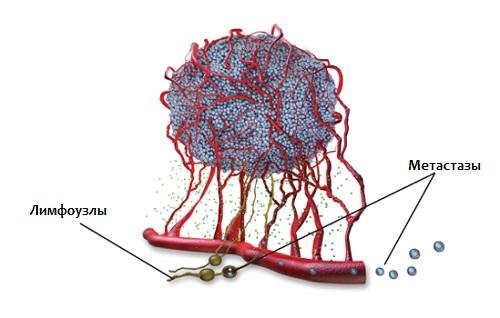 Метастазирование гематогенным путем