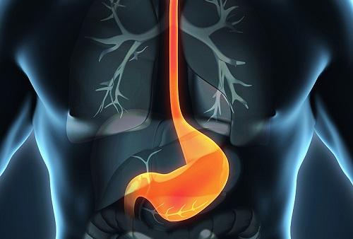 Низкодифференцированный рак желдука