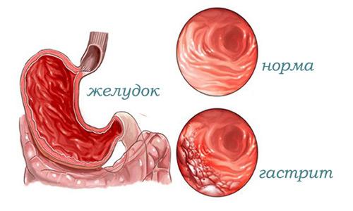 гастрит эндоскопия