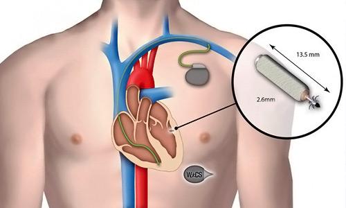 сердечный имплант