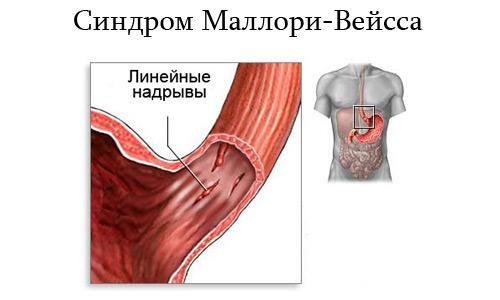 синдром Маллори-Вейсса