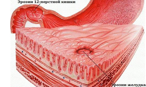 гиперпластические эрозии в желудке